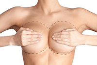 Breast Augmentation Implant in Huntington, Long Island NY